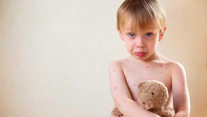 مراقبت از کودک مبتلا به آبله مرغان