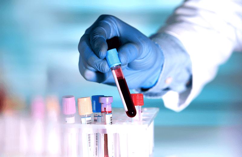 روش تشخیص کلسترول