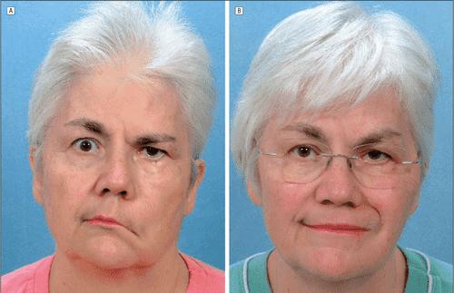 درمان سکته مغزی در سالمندان