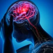 سکته مغزی  چیست ؟ علائم سکته مغزی + درمان انواع سکته مغزی