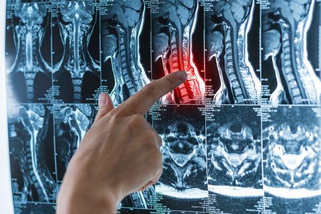 ارتباط مشکلات نخاعی با عملکرد مغز