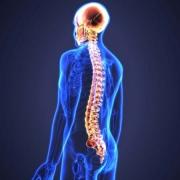 مشکلات نخاعی چیست ؟ علائم مشکلات نخاعی چیست ؟