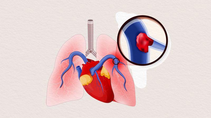 آمبولی ریه و درمان بیماری های ریوی