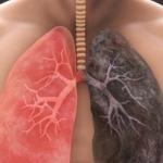 بیماری های ریه چیست؟ (علائم + درمان بیماری های ریه)
