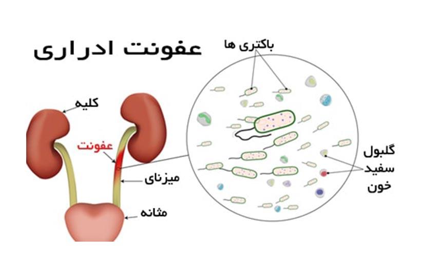 بیماری های مثانه و عفونت ادراری