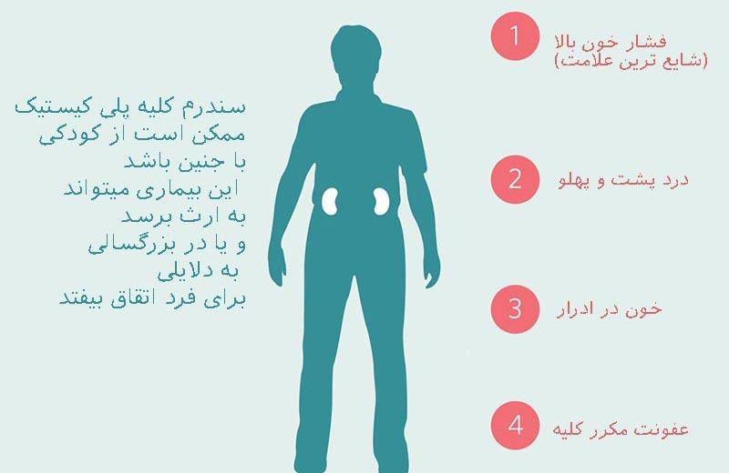 علائم بیماری کلیه پلی کیستیک