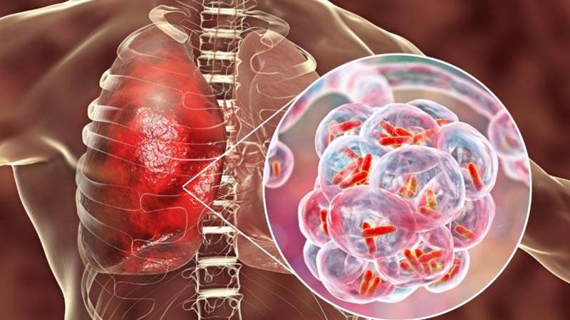 بیماری های ریوی و درمان فشار خون