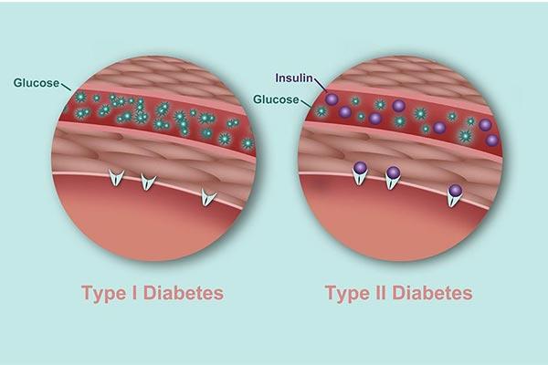 انواع بیماری دیابت