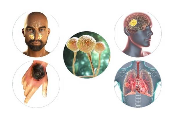 بیماری قارچ سیاه کجای بدن را درگیر میکند
