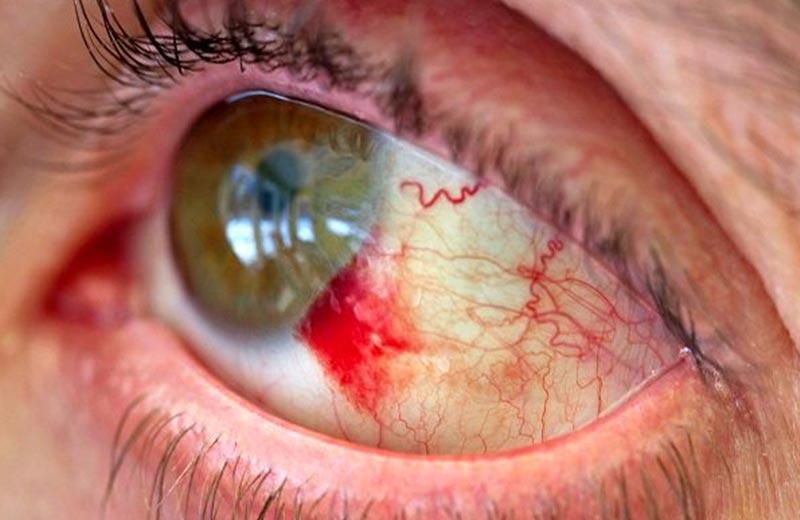 آسیب دیدگی ناگهانی چشم در سالمندان