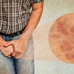 بیماری های مقاربتی در سالمندان + (علائم ابتلا و روش های درمان)