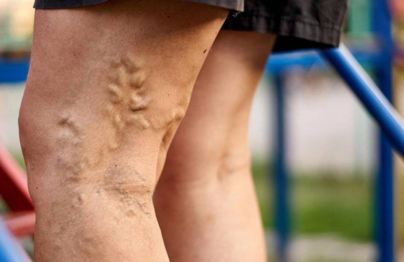 علائم بیماری رگ های محیطی