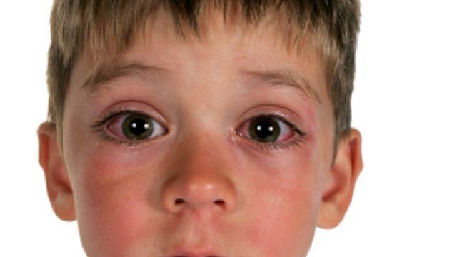 علائم سندرم التهابی