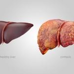 علائم کبد چرب + درمان کبد چرب و روش های پیشگیری از ابتلا