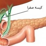 بیماری های کیسه صفرا (عوارض، علائم و درمان آن)