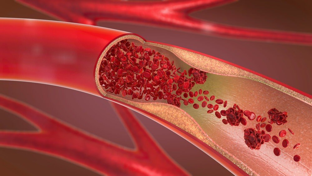 تشخیص بیماری شریانهای محیطی